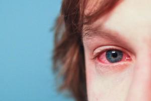 gerötetes Auge